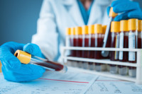 A researcher wearing gloves and a white coat holds up tubes of blood for testing