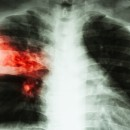 Cochrane Library release Special Collection on diagnosing tuberculosis