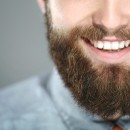 Home-based chemical bleaching of teeth in adults